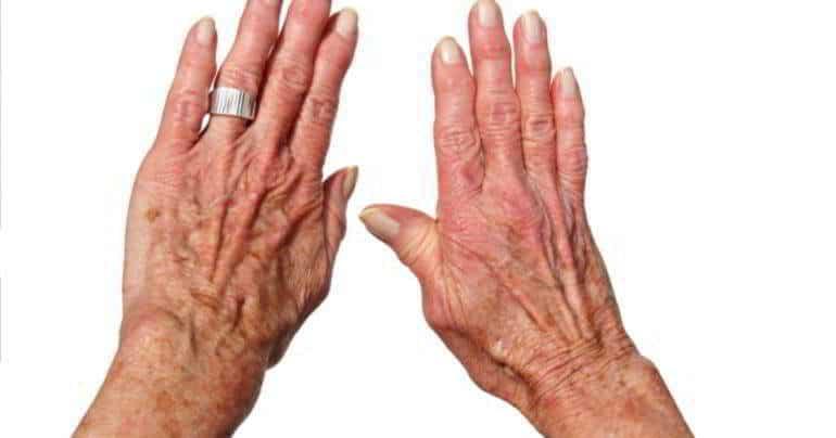 Артроз кисти руки фото