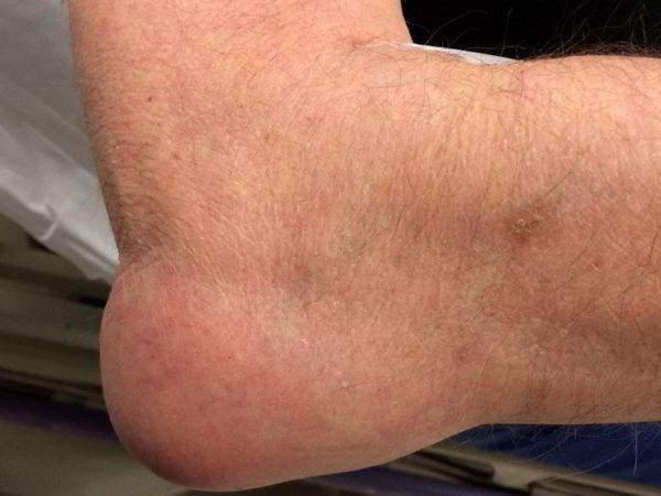 Изображение - Как восстановить жидкость в коленном суставе sinovialnaya_opuhol_1-600x450