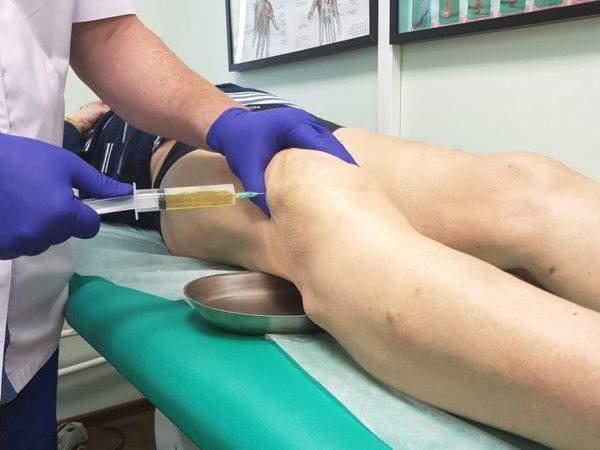 скопление жидкости в тазобедренном суставе