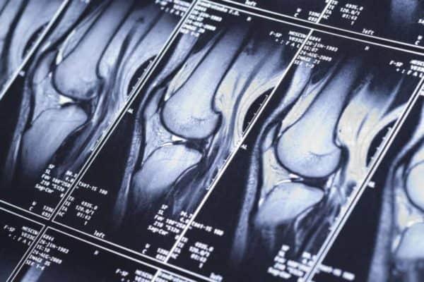 Изображение - Сколько стоит томография коленного сустава snimok-1-600x400