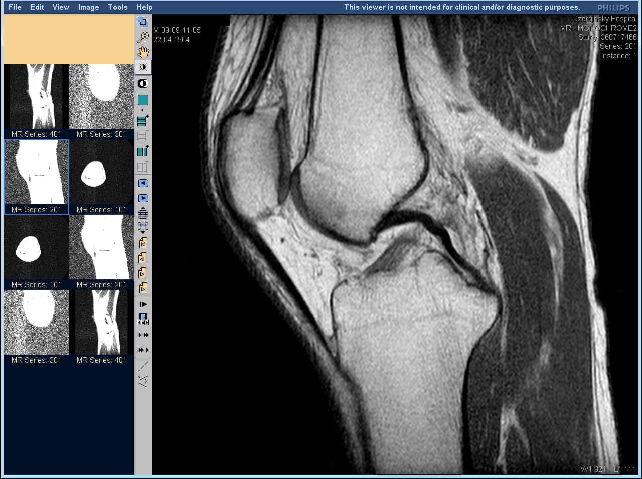 Мрт или узи коленного сустава лечение суставов внутренним жиром свиным