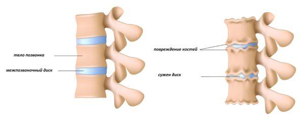 Остеоартрит позвоночника или спондилез