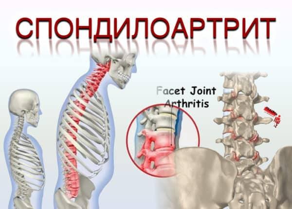 Спондилоартрит позвоночника: что за болезнь и как её лечить?