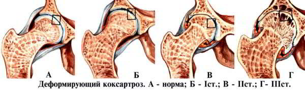 Артроз тазобедренного сустава 3 степени лечение