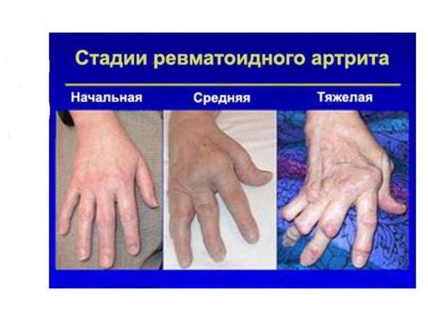степени артроза
