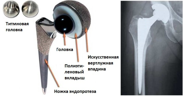 Строение эндопротеза ТБС с парой трения металл-полиэтилен