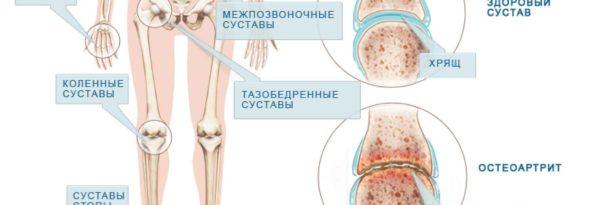 суставной хрящ коленного сустава