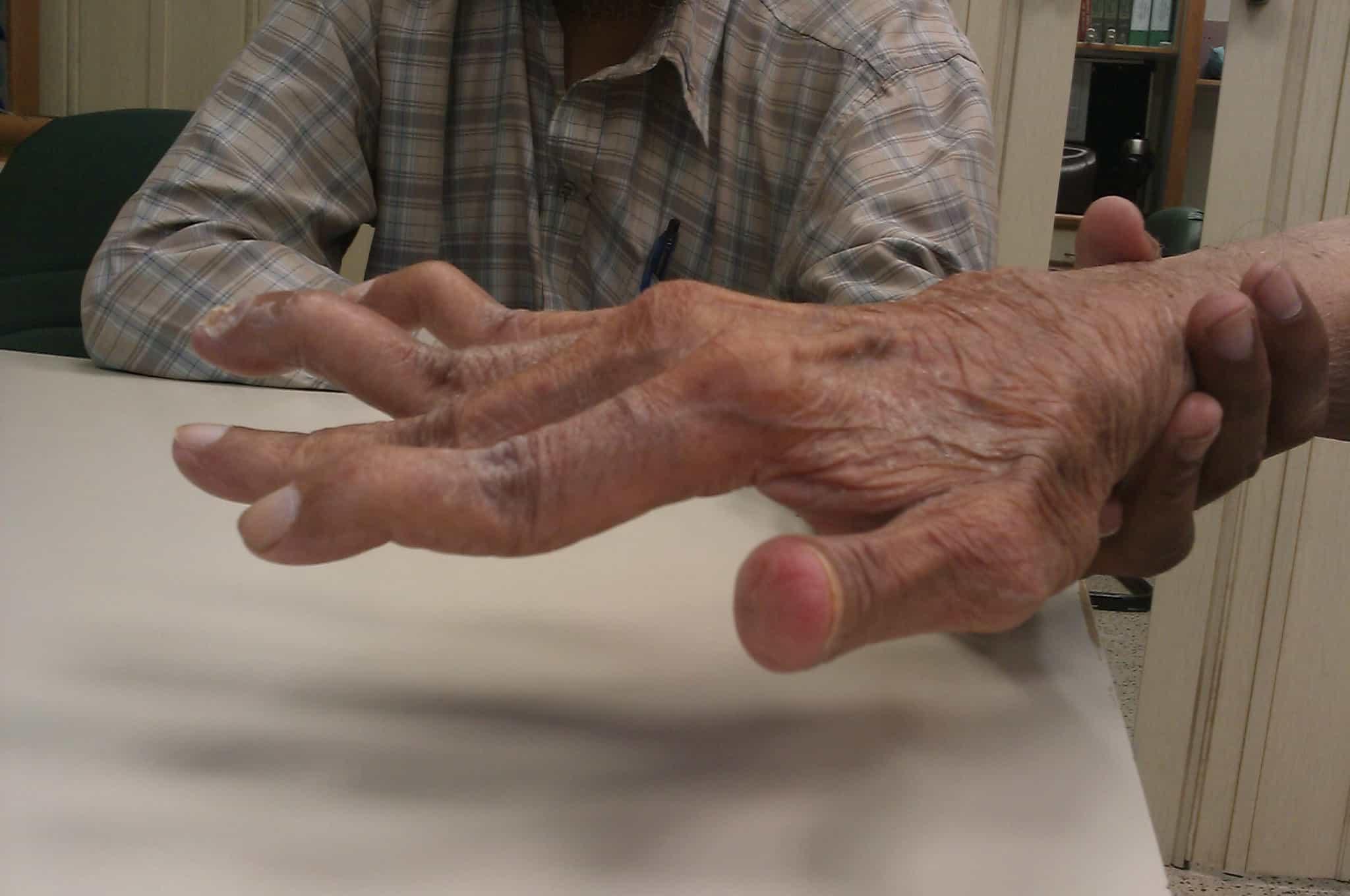 Особенности лечения ревматоидного артрита серонегативного типа