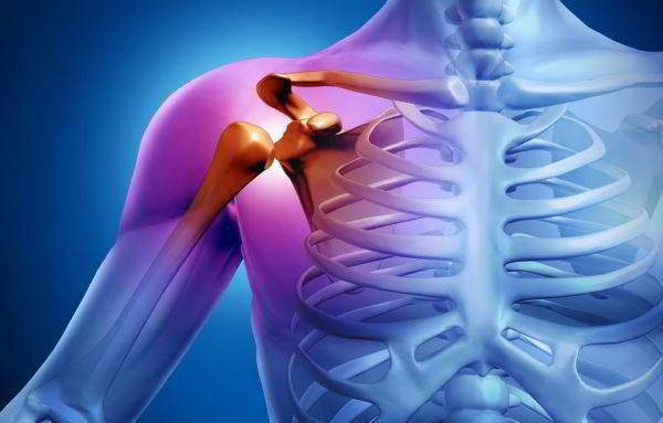 Тендинит надостной мышцы - симптомы, признаки и методы лечения тенденита надостной мышцы