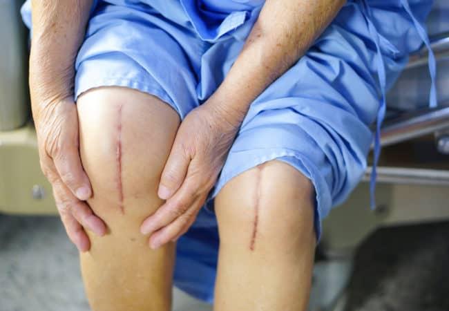 Эндопротезирование коленного сустава новости