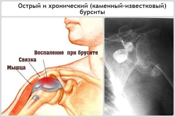 воспаление плечевого сустава