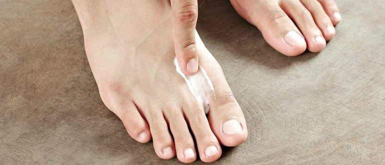 Лечение лигаментита стопы