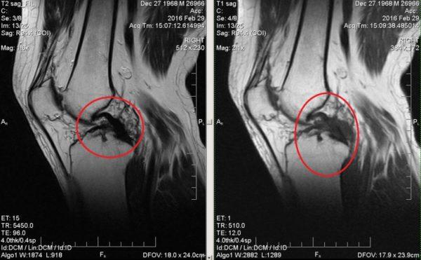 Изображение - Сколько стоит томография коленного сустава zabolevanie-kolennogo-sustava-600x371