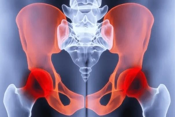 Жидкость в тазобедренном суставе: постановка дифференцированного диагноза и выбор эффективной стратегии лечения